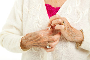 Senior woman's arthritic hands struggling to button her sweater.